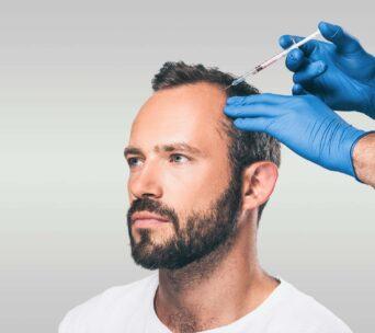 dr-abuagela-prp-behandlung-gegen-haarausfall-frankfurt